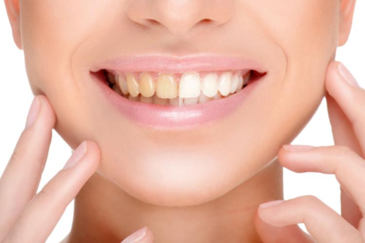 Does-whitening-damage-my-teeth