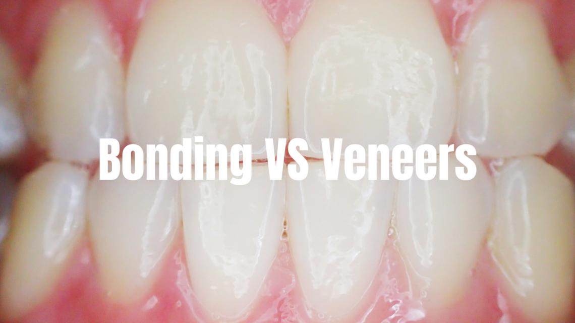 bonding vs. veneers