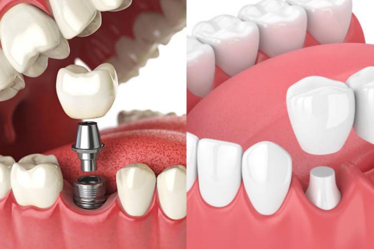 implants vs. bridge